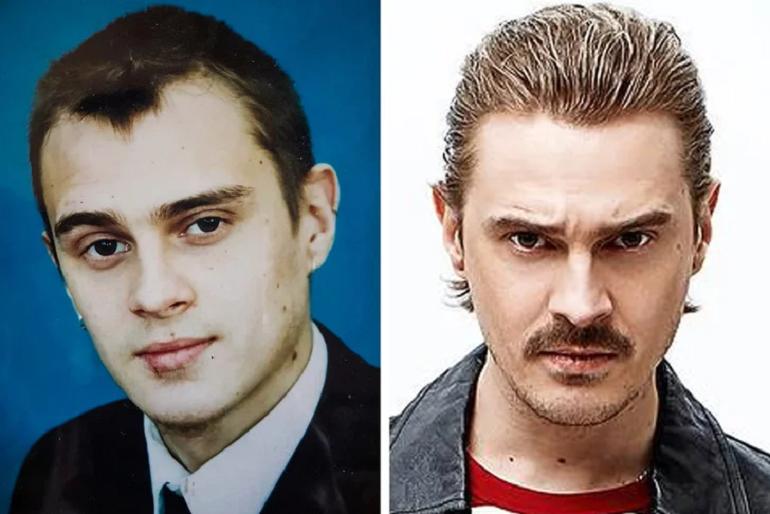5 российских звезд, которые поменяли свою внешность, чтобы стать популярнее